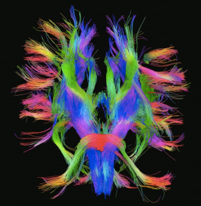 DSI image of white matter tracts in the brain